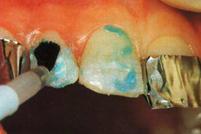 протравка эмали препарированных зубов