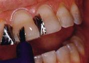 нанесение цемента на зуб