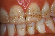 тетрациклиновые зубы